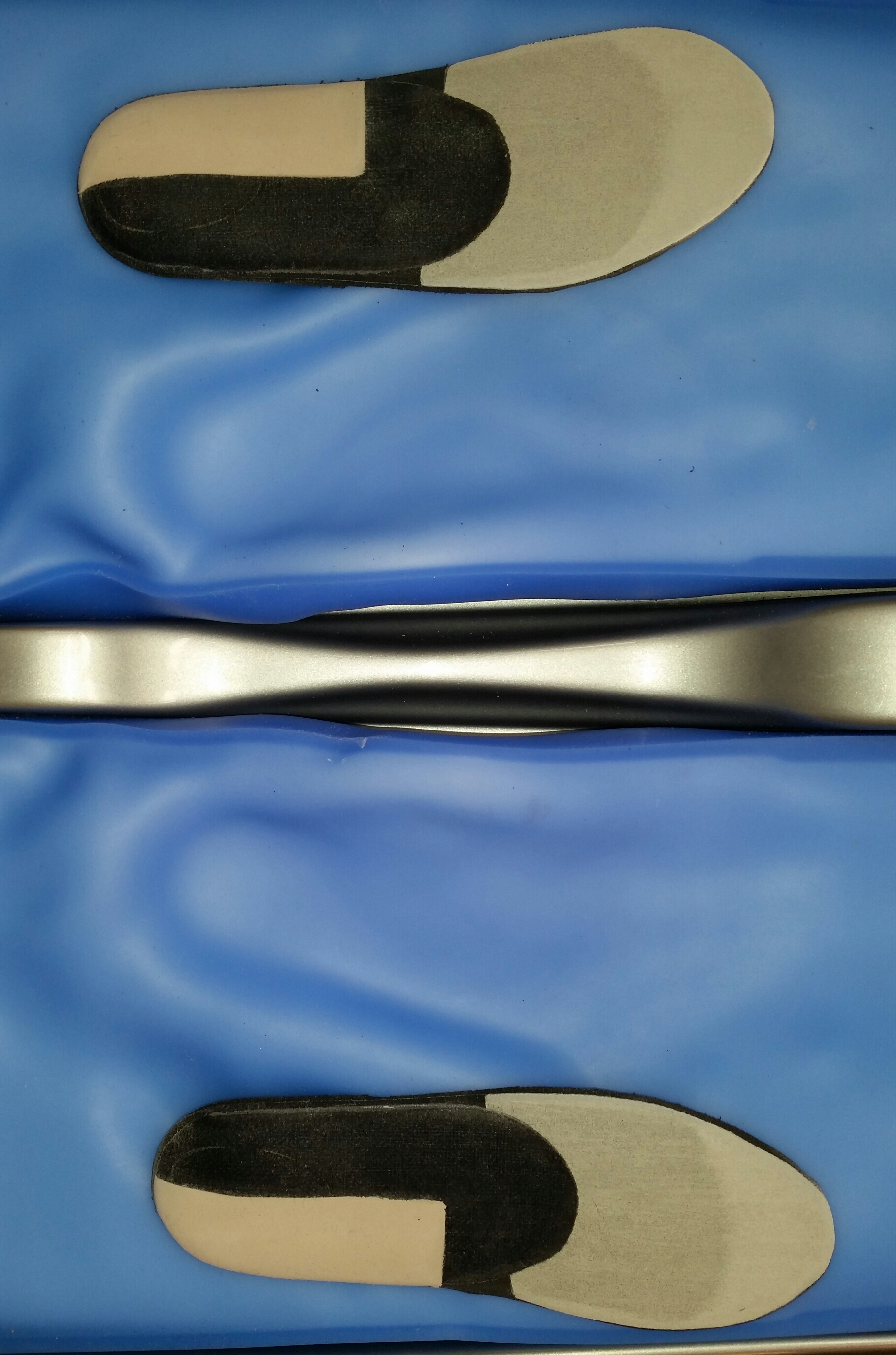 coin postérieur supinateur